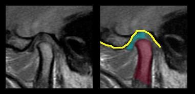 Ressonância nuclear de uma articulação temporomandibular