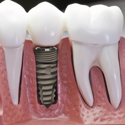 Ilustração Implantodontia