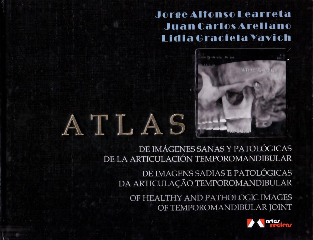 Atlas de Imagens Sadias e Patológicas da Articulação Tempormandibular